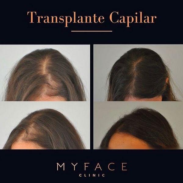Aumento de densidade da região frontal-myface-clinic