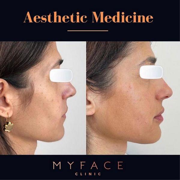 Tratamentos de Lábio, Radiesse, ULTRAFORMER III e Botox-myface-clinic