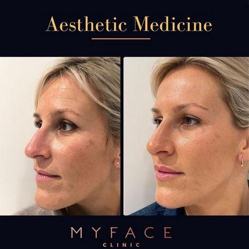 Rugas na face - Rejuvenescimento facial - botox - ULTRAFORMER III e bioestimulador de colagénio 01