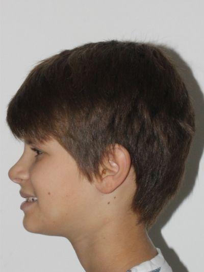 Crescimento facial -classe III - Silvia Martins Neves - Caso0105