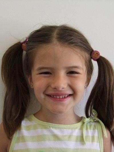 Crescimento facial - mordida aberta - Silvia Martins Neves - Caso0101