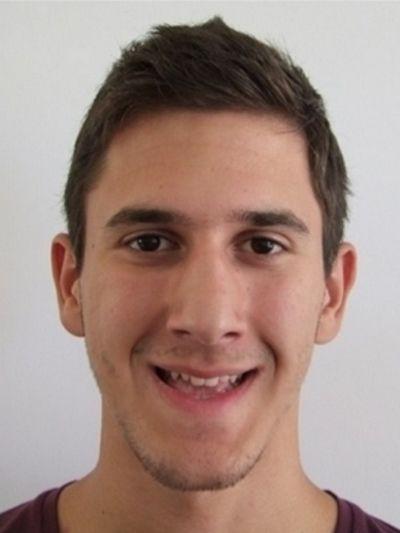 Cirurgia de correção dos maxilares - Coimbra - lisboa - Sandra ferreira- caso0104