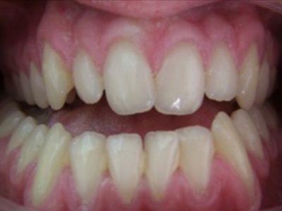 Cirurgia de correção dos maxilares - Coimbra - lisboa - Sandra ferreira- caso0102
