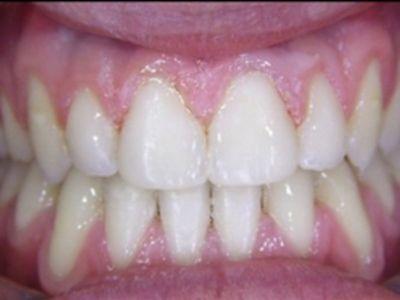 Cirurgia de correção dos maxilares - Coimbra - lisboa - Sandra ferreira- caso0101
