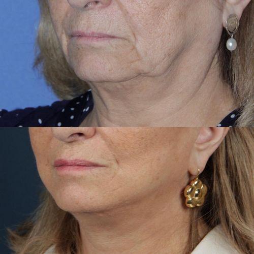 deep plane facelift - jose carlos neves - myface clinic - 02