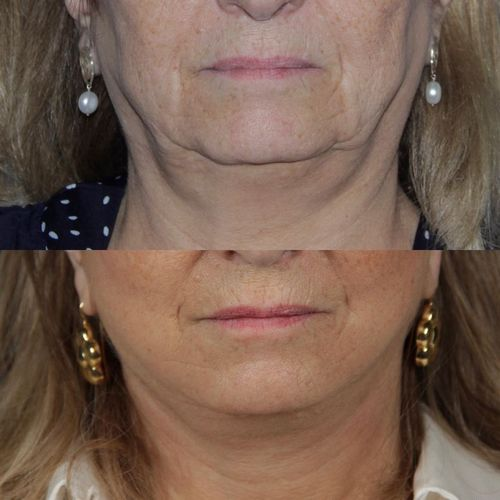 deep plane facelift - jose carlos neves - myface clinic - 01