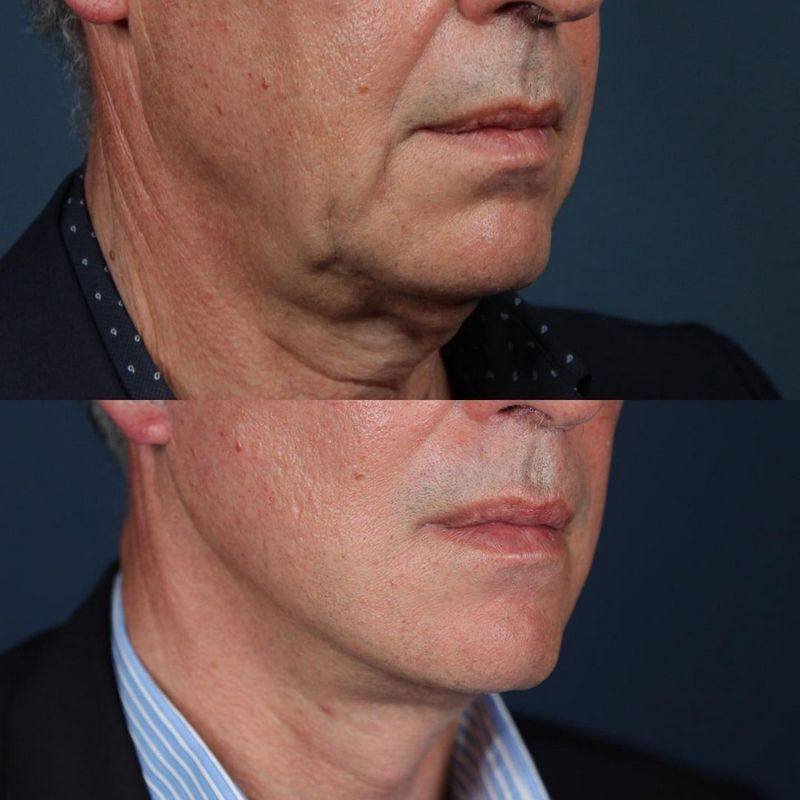 deep plane facelift - jose carlos neves - myface clinic - 03