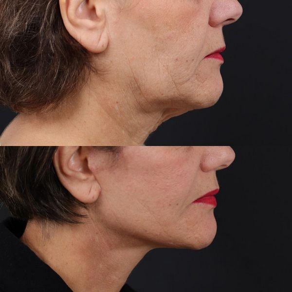 deep plane facelift - jose carlos neves - myface clinic - coimbra e lisboa - 01