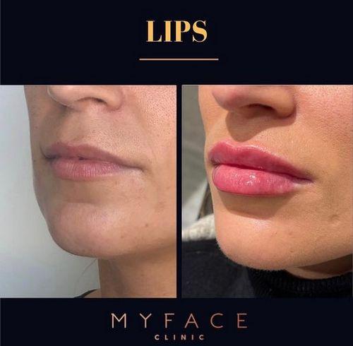 Rugas na face - Rejuvenescimento facial - botox - ULTRAFORMER III e bioestimulador de colagénio 01Hidratação labial (com ácido hialurónico)