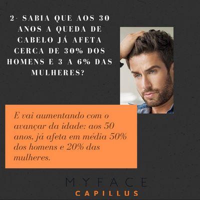 Curiosidades sobre a perda de cabelo - Myface clinic - Lisboa - 03