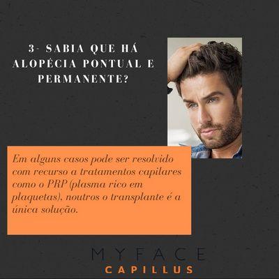 Curiosidades sobre a perda de cabelo - Myface clinic - Lisboa - 02