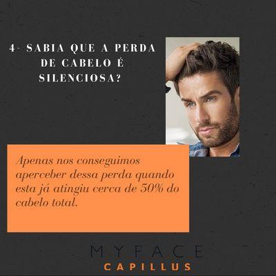 Curiosidades sobre a perda de cabelo - Myface clinic - Lisboa - 01