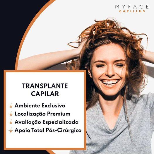 Implantes capilares - Transplante Capilar - Myface clinic - Lisboa - 01