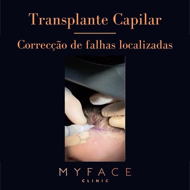 Transplante capilar - Correção de falhas de densidade localizadas