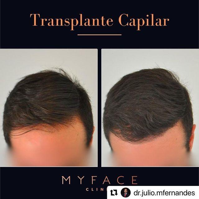 Transplante capilar Lisboa - myface clinic - caso -02